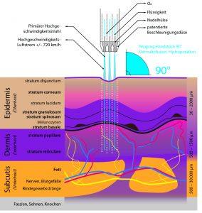 Das Bild zeigt schematisch die JeetPeel Behandlung